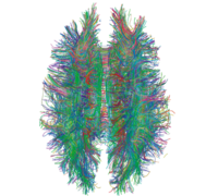 White Matter Connections Obtained with MRI Tractography.png